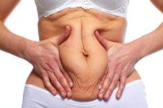 Los beneficios médicos de la Cirugía Estética del Abdomen | Clínica Estética en Murcia – Clínica Jaranay – Cirugía Plástica