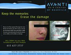 Ad Design Examples - Avanti Skin Center of Nashville Image Marketing Pros 615-200-7717 Nashville 865-291-0373 Knoxville