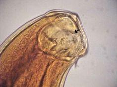 Necator americanus buccal capsule