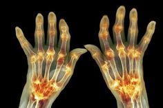 Reactive Arthritis is a type of arthritis that occurs as a result of an infection in the body. When one gets an infection the body reacts by triggering this form of arthritis. Typical infections triggering this form of arthritis are u What Causes Rheumatoid Arthritis, Rheumatische Arthritis, Reactive Arthritis, Yoga For Arthritis, Juvenile Arthritis, Natural Remedies For Arthritis, Arthritis Relief, Types Of Arthritis, Inflammatory Arthritis