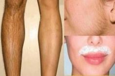 Remove Unwanted Facial Hair, Unwanted Hair, Remove Public Hair, Soda Recipe, Wax Hair Removal, Beauty Recipe, Skin Care Tips, Beauty Hacks, Skin Whitening