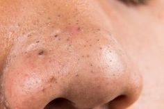 How to get rid of blackheads on face? How to treat chin blackheads? Home remedies for blackheads on face & nose. Treat blackheads on chin naturally & fast. Blackhead Remedies, Blackhead Remover, Acne Treatment, Vitiligo Treatment, How To Get Rid Of Acne, How To Remove, Get Rid Of Blackheads, Skin Mask, Pimple Popping