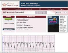 Easy EKG Rhythm Interpretation Part 2 Ekg Interpretation, Lung Sounds, Heart Sounds, Benoit, Nurse Humor, Videos Funny, Disorders, Make It Simple, Clinic