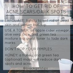 "blackgirlstips: "" How to Get Rid of Dark Spots/Acne Scars """