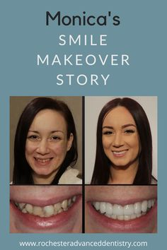 Monica came to our office wanting a smile makeover. She was not interested in traditional orthodontics, she wanted to have a straight and healthy smile as soon as possible. We were able to achieve her goal with instant orthodontics, by using a combination of porcelain veneers and bridges. She was able to have the smile of her dreams in less than 6 months Dental Hygienist, Dental Implants, Dental Bonding, Dental Veneers, Porcelain Veneers, Smile Makeover, Tooth Pain, Before And After Pictures, Dentists