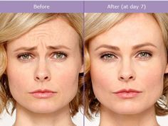 With real, noticeable results, no surgery and no recovery time, there are many reasons why BOTOX® has been chosen by millions of patients and their doctors. Call the office to schedule your complimentary consultation with Dr. Ridha and find out if Botox is right for you! 518.306.5466