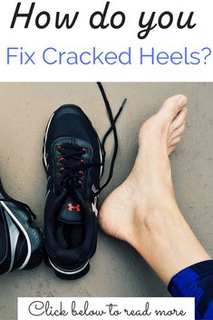 Stop worrying about your cracked heels and start fixing them