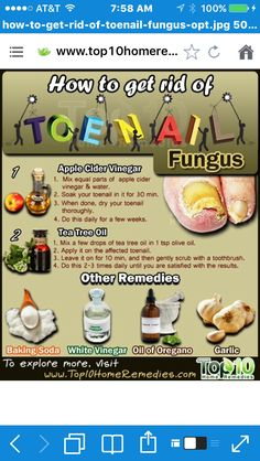 Watch This Video Mind Blowing Home Remedies for Toenail Fungus that Really Work Ideas. Astonishing Home Remedies for Toenail Fungus that Really Work Ideas. Toenail Fungus Remedies, Toenail Fungus Treatment, Top 10 Home Remedies, Natural Home Remedies, Natural Toe Fungus Remedy, Toe Fungus Cure, Manicure Y Pedicure, Pedicures, Do It Yourself Home