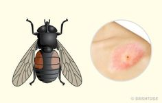 10 Bug Bites Anyone Should Be Able to Identify Insect Bites, Girly Things, Bugs, It Hurts, Todo List, Voici, Skin Care, Healthy, Fitness
