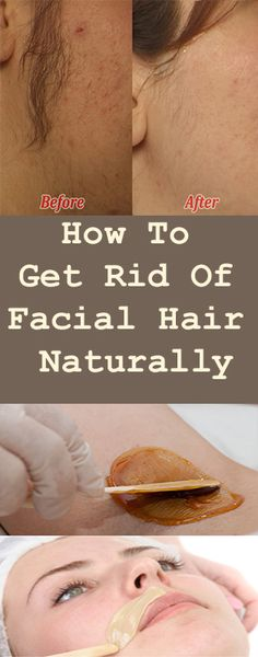 How To Get Rid Of Facial Hair Naturally #fitness #beauty #hair #workout #health #diy #skin #Pore #skincare #skintags  #skintagremover  #facemask #DIY #workout #womenproblems #haircare #teethcare #homerecipe