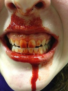 I hope you do a lot of coke, end up with bloody teeth I Hope You, Teeth, Tooth