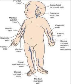 Pediatric IV sites