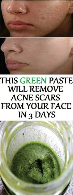 This Green Paste Will Remove Acne Scars From Your Face in Just 3 Days