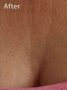 Pin By Sue Stevenson On Sue S Crepey Skin Anti Aging Treatments Skin Care Cream