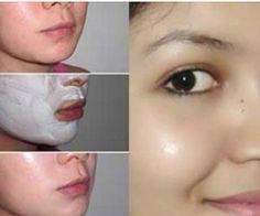 Ideas Baking Soda Skin Care Acne Scars For 2019 Acne Mask, Skin Mask, Homemade Face Masks, Homemade Skin Care, Fitness Workouts, Skin Tips, Skin Care Tips, Glow Skin, Tips Belleza