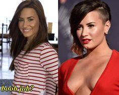 Demi Lovato Breast Implant Surgery - Celebrity Bra Size, Body Measurements and Plastic Surgery Celebrity Surgery, Chin Implant, Best Doctors, Celebs, Celebrities, Demi Lovato, Plastic Surgery, Facial, Breast