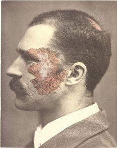 O.G. Mason (Bellevue Hospital, New York)  G.W., age 30: Lupus Vulgaris  1880-1885 (ca)