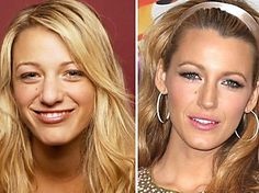 We look to our most revered celebrities as icons in beauty and fashion. Believe it or not, most of these stars were not born the way they now appear. What procedures have Blake Lively, Demi Moore, and these other celebs gone under the knife for? Photoshop, Celebrity Plastic Surgery, Blake Lively Plastic Surgery, Celebrities Before And After, Operation, Do It Yourself Fashion, Lip Fillers, Rhinoplasty, Without Makeup
