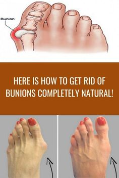 Made of extra soft material, comfortable to wear. Health Eating, Healthy Eating Tips, Get Healthy, Easy Cooking, Healthy Cooking, Wellness Tips, Health And Wellness, Bunion Remedies, Nutrition Tips
