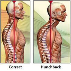 5 posture problems and how to fix them.