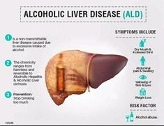 Alcoholic liver disease is damage to the liver and its function due to alcohol abuse. Liver Disease Diet, Health Shop, Women's Health, Mental Health, Health Care, Health Fitness, Health Pictures, Healthy Liver, Nursing Notes