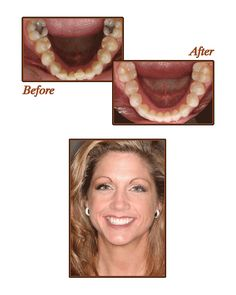 Even if you have a small issue with your teeth, Invisalign can definitely help!