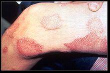 Lepra #Mycobacterium leprae #Aussatz #Hansen-Krankheit #Morbus Hansen #한센병, 나병, 문둥병
