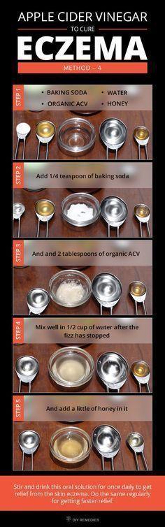 How to Get Rid of Eczema using Apple Cider Vinegar #EczemaRash
