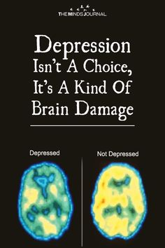 Depression Isn't A Choice, It's A Kind Of Brain Damage - https://themindsjournal.com/depression-isnt-a-choice/
