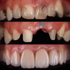 A dental implant is a way to replace the missing tooth with something very similar to natural. At Persiatour we assist you to get the best medical service. Dental Art, Dental Teeth, Dental Implants, Happy Dental, Dental Anatomy, Restorative Dentistry, Missing Teeth, Dental Bridge, Dental Crowns