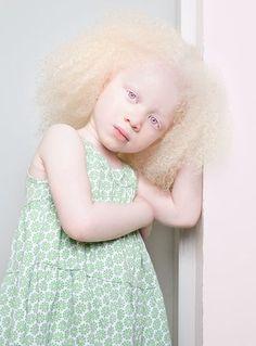 Eine Bildstrecke rückt Albinismus in ein völlig neues Licht #refinery29