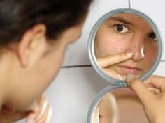 El acné suele presentarse en cualquier persona sin importar la edad que esta tenga. Conoce los remedios naturales para combatir el acné.