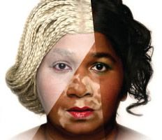 """Black Person Skin Bleaching"" ---- I recognize that here is uneven skin tone, but why bleach your skin? I thought we had learned that ""Black is Beautiful"" !!! amf."