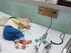 Nhiều em bé Hà Nội bị ho gà biến chứng nặng - https://home.vn.city/nhieu-em-be-ha-noi-bi-ho-ga-bien-chung-nang.html -  Bệnh viện Nhi Trung ương đang điều trị cho một trẻ bị ho gà trong tình trạng rất nặng phải lọc máu và sử dụng kỹ thuật ecmo – trao đổi ôxy qua màng ngoài cơ thể. Kỹ thuật này được xem là cách tốt nhất điều trị bệnh ho gà nặng hiện nay.  Sau 6 ngày được hỗ trợ