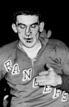 Lou Fontinato's face immediately after his tangle with Gordie Howe.
