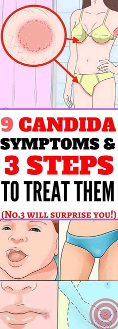 Here Are 9 Candida Symptoms & 3 Steps To Treat Them!!! - Way to Steal Healthy