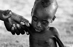 Hunger and Poverty - Photo album - Extreme Starvation