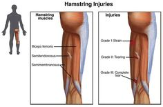 Hamstring Injury Causes, Symptoms, Diagnosis And Treatment
