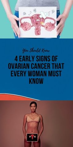 4 Early Signs Of Ovarian Cancer That Every Woman M. - 4 Early Signs Of Ovarian Cancer That Every Woman Must Know - Signs Of Ovarian Cancer, Ovarian Cancer Symptoms, Wellness Fitness, Health Fitness, Health Yoga, Health Heal, Glowing Skin Diet, Fat Burning Detox Drinks, Muscle Building Workouts