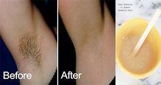 Remova os pelos das axilas rapidamente e sem dor com estas receitas naturais