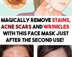 Say hello to this natural facial cleanser with coconut oil and baking soda, and say goodbye to wrinkles and sagging facial skin! Brown Spots On Face, Dark Spots, Bleaching Your Skin, How To Remove, How To Apply, Natural Facial, Homemade Face Masks, Wrinkle Remover, Good Skin