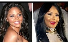 Lil Kim Plastic Surgery Before and After. Throughout the years she has opted out for a more Barbie -doll look, whitening her skin. She hates to be black