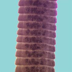 Hymenolepis proglottids. Medical Laboratory