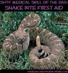 SHTF Medical Skill of the Day: Snake Bite First Aid.  Really need this info for my urban homestead.  Rattlesnakes are frequent visitors.