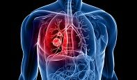 Researchers Inhibit Tumor Growth in New Subtype of Lung Cancer http://www.sciencetotal.com/news/2016-08-researchers-inhibit-tumor-growth-in-new-subtype-of-lung-cancer/