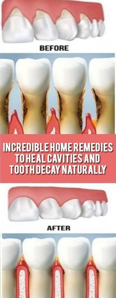 Incredible Home Remedies to Heal Cavities and Tooth Decay Na.- Incredible Home Remedies to Heal Cavities and Tooth Decay Naturally - Natural Health Remedies, Herbal Remedies, Natural Cavity Remedy, Cold Remedies, Bloating Remedies, Heal A Cavity Naturally, Remedies For Tooth Ache, Home Remedies For Cavities, Home Remedies