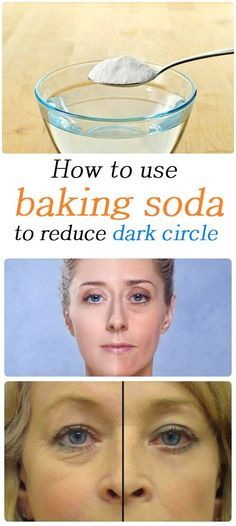 Dark circles are a problem for many people, whether caused by a sleepless night or prolonged fatigue, improper diet. Dark circles can be a symptom of more serious problems #skincare #skincaretips #skin #darkskin