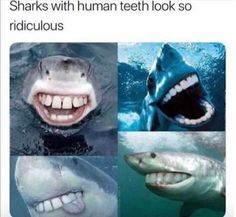 As many of you know this week is Shark Week. Here's a little dental humor Shark Week style for you! 9gag Funny, Haha Funny, Funny Memes, Funny Stuff, Big Teeth, Memes Humor, Funny Quotes, Hilarious Sayings, Hilarious Memes