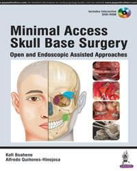 Minimal Access Skull Base Surgery: Open and Endoscopic Assisted Approaches (Includes Interactive DVD-ROM)