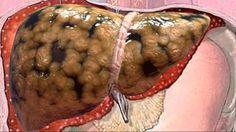 Apunta este remedio antes de que se borre: Médico muestra cómo eliminar la grasa del hígado en poco tiempo